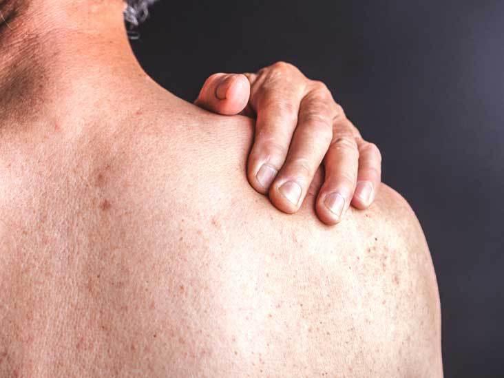 Luxação do ombro: sintomas, causas e tratamento