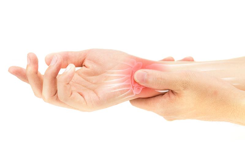 Artrite: sintomas, causas e tratamento