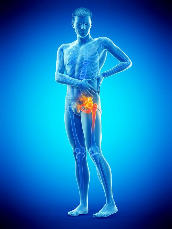 artrose no quadril