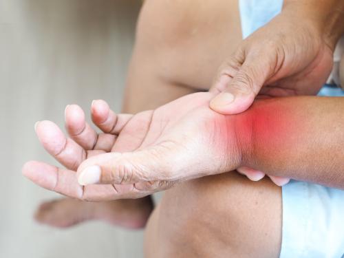 Artrite nas mãos: sintomas, causas e tratamentos