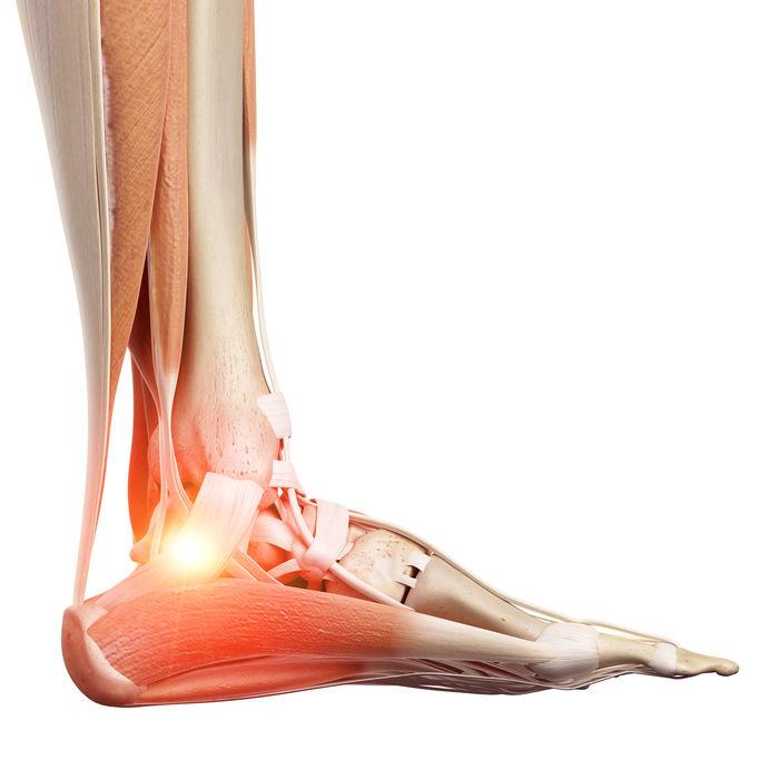 Osteomielite: causas e tratamentos