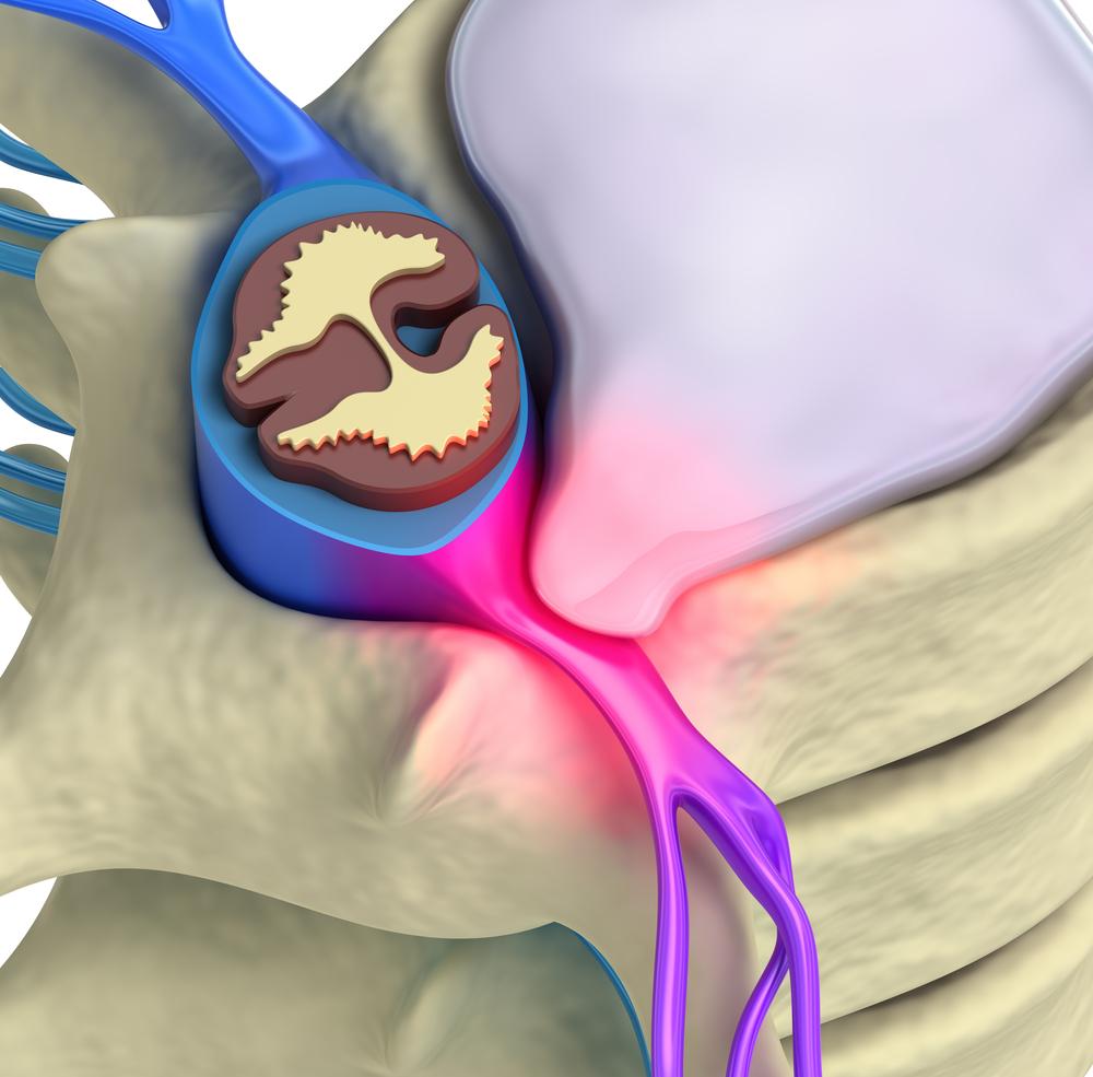 Como é feita a cirurgia de hérnia de disco