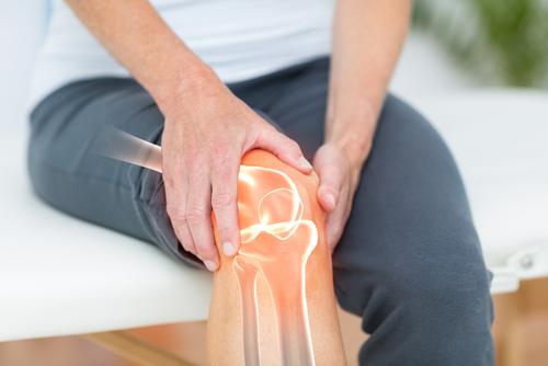 Artrose nos joelhos: conheça os sintomas