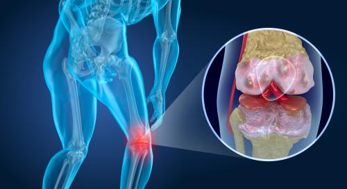 Artrose nos joelhos: diagnóstico e tratamentos